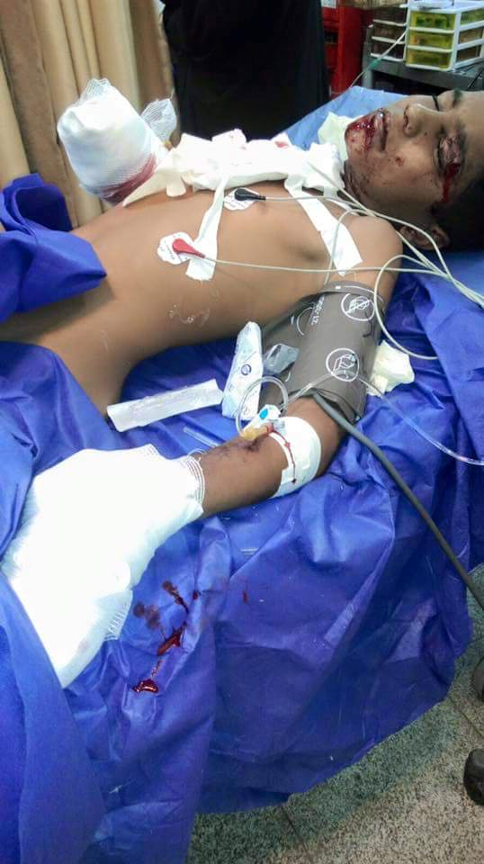 Photo of An Ahwazi Arab child' life in danger after bomb explosion